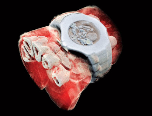 Fascinating new innovation: 3D colour X-rays